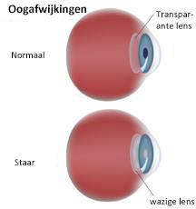 cataract oog