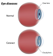 cataract eye