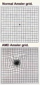 Amsler grids