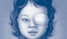 niña con parche en el ojo