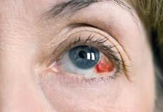 subjunctival hemorrhage