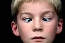 niño con ojos cruzados