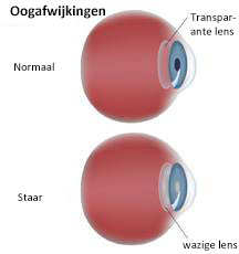 cataract oog