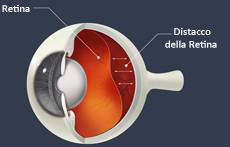 retinal detachment drawing