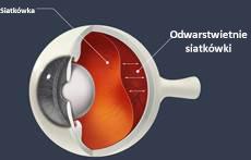 problemy oczu związane z wiekiem