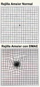 rejilla de Amsler