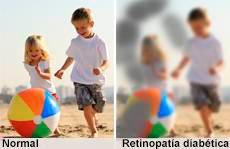 visión con retinopatía diabética