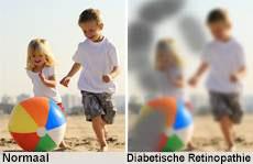 diabetische retinopathie visie
